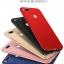 เคส Xiaomi Mi5x / Mi A1 PC Frost Shiled Case thumbnail 7