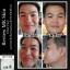Clear Face สิวผด สิวอุดตัน สิวอักเสพ thumbnail 6