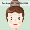 Tea Tree Oil กับสิวอักเสบ