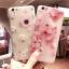 เคสมือถือ R9spro-เคสซิลิโคนสกรีนลายดอกไม้นูน3D Pre-Order thumbnail 1